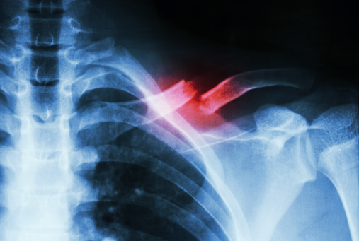 Film X-ray show complete fracture middle 1/3 left clavicle
