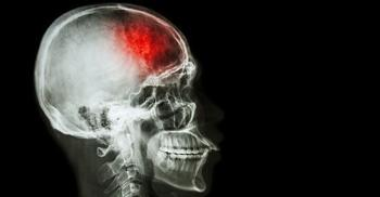 X-ray of a skull suffering from a stroke, affected area colorized in red