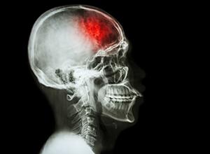 Røntgenbilde av hodet til en pasient med slag