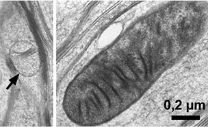 Mitokondrier i myelin vs i nerveceller