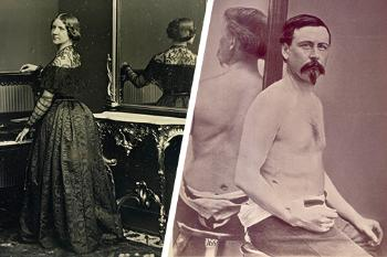 Split image. Left side shows a woman in 19th century dress, with her side to the camera and her back reflecting in a mirror to her side. Right side shows a man sitting in front of a mirror with no shirt on. On the lower right side of his torso a scar is visible.