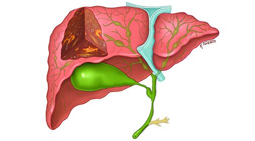 Illustrasjon av lever rammet av primær skleroserende cholangitt (PSC).
