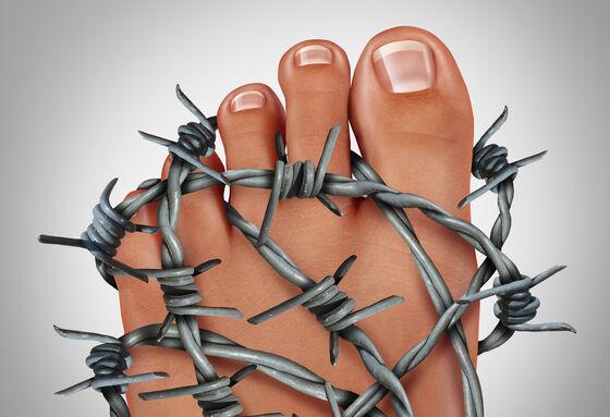 En fot som er omgitt av piggtråd