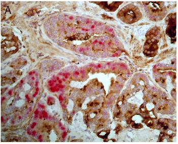image of prostate cancer cells